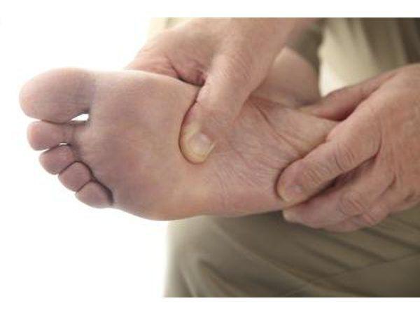 Pseudogout é difícil de diagnosticar porque é tão semelhante a gota regular.