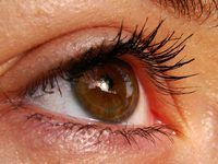 dicas de senso comum pode ajudar a reduzir o aparecimento de olheiras sob.