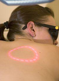 Esteticistas usar lasers para corrigir uma variedade de problemas de pele.