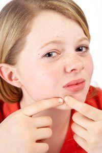 Acne muitas vezes aparece pela primeira vez com o início da puberdade.