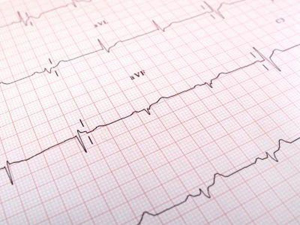 os resultados do teste de ECG no papel