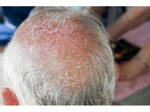 Se você tem carecas e coceira no couro cabeludo, você também pode ter uma infecção fúngica chamada tinea capitis anel aka verme