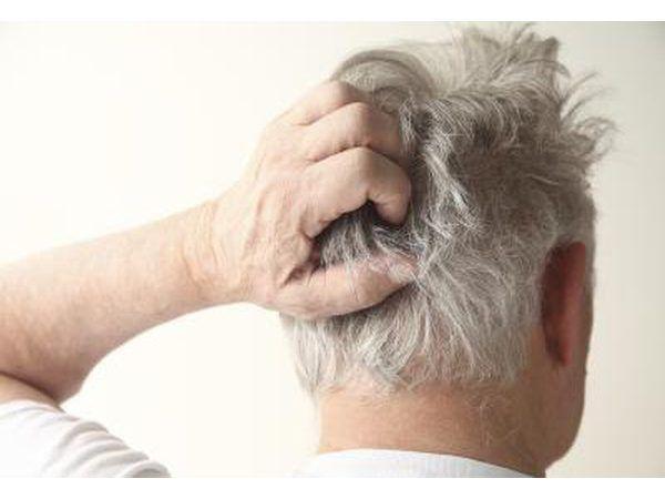 Os sintomas da tinea capitis são coceira no couro cabeludo, as lesões cheias de pus no couro cabeludo, lesões escamosas redondos e pequenos pontos pretos no couro cabeludo