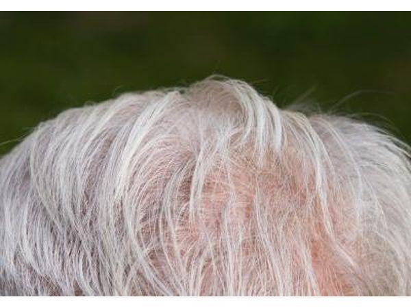 As pessoas com micose nunca pode crescer o cabelo nas áreas do couro cabeludo que foram afetados